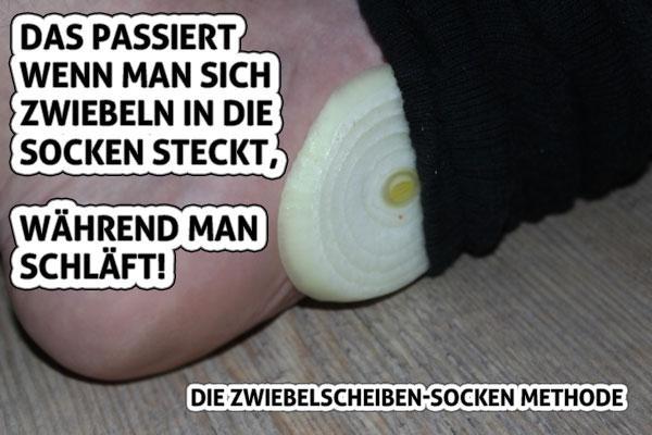 Zwiebelscheiben Socken Methode
