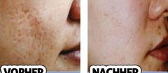 Entfernen Deine Akne-Narben für immer!
